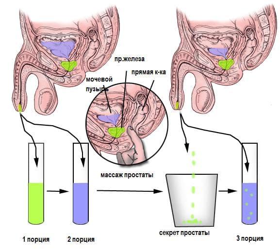 Пить свою мочу от простатита бактериальный простатит можно заразиться